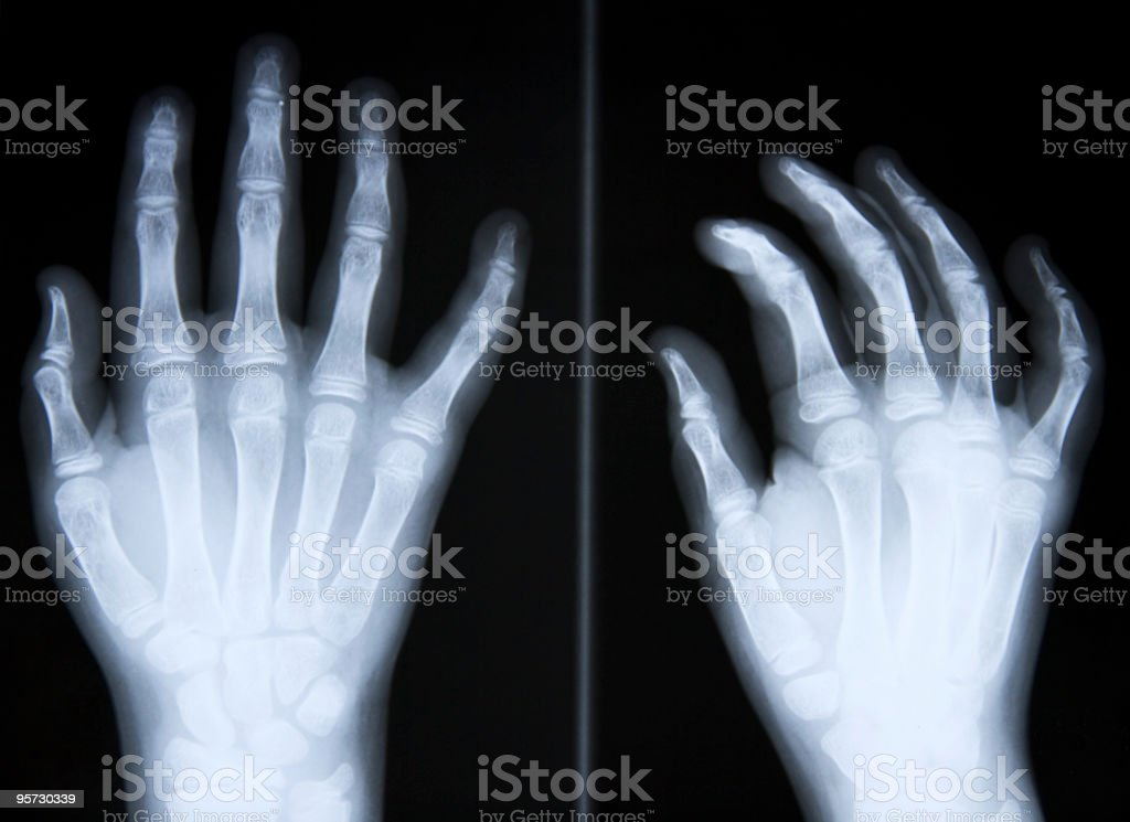 x-ray stock photo