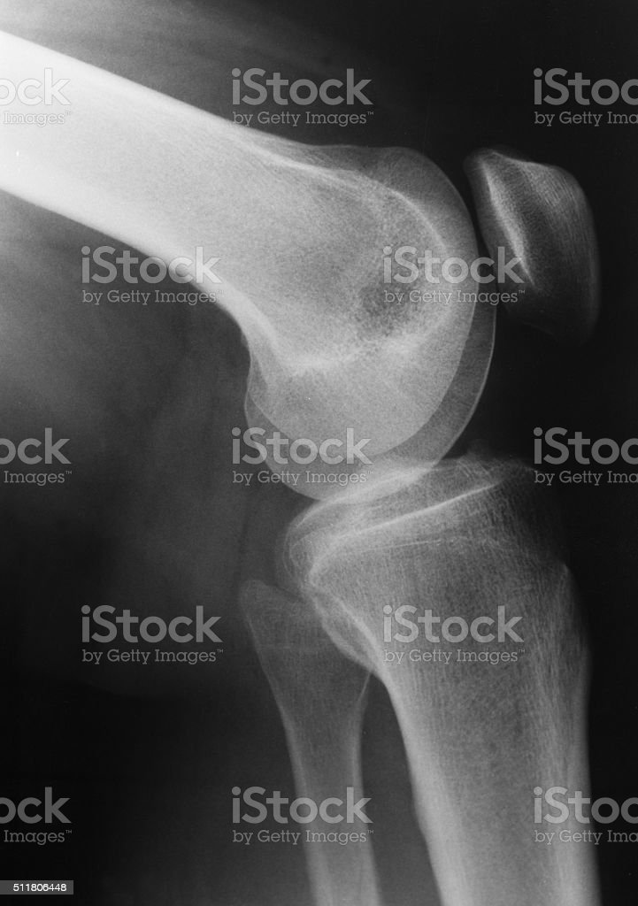 X-ray picture of knee stock photo