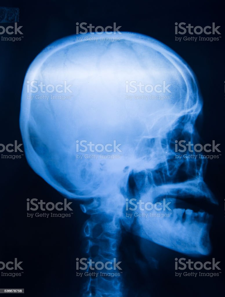 X-ray picture of the skull stock photo