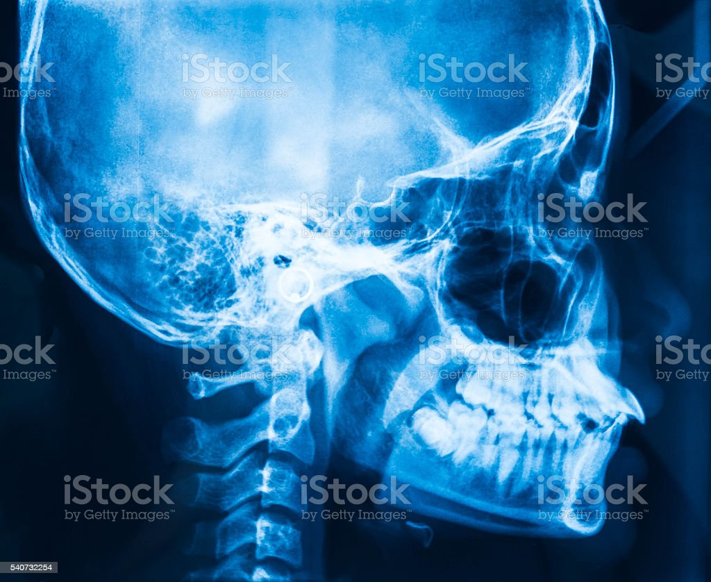 X-ray picture of the skull. stock photo