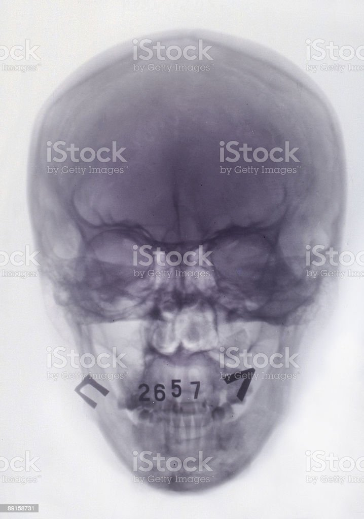 x-ray picture stock photo