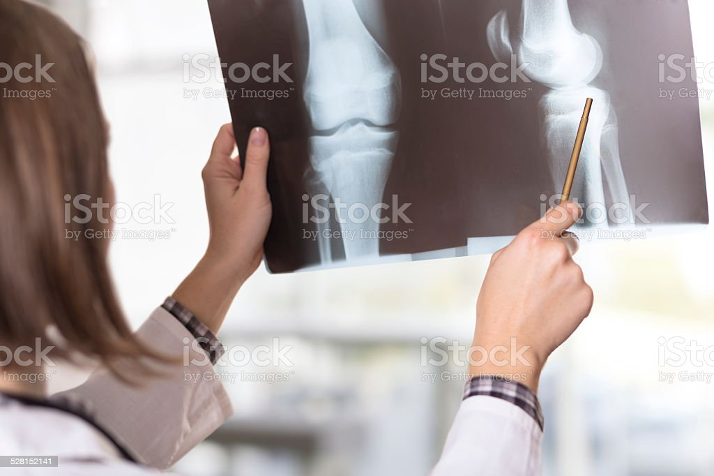 X-ray scan stock photo