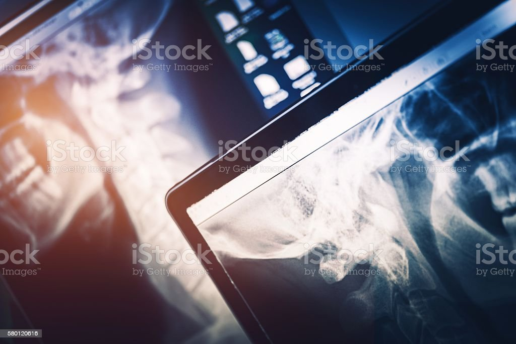XRay Scanning Equipment stock photo