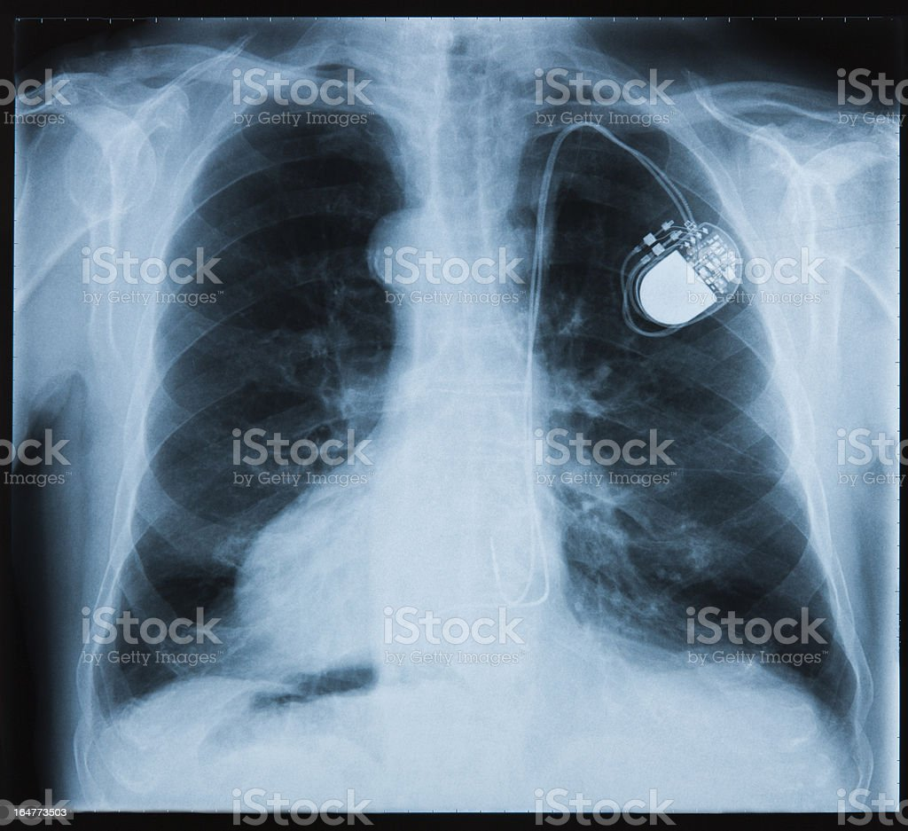 X-ray showing a pace maker in the chest royalty-free stock photo