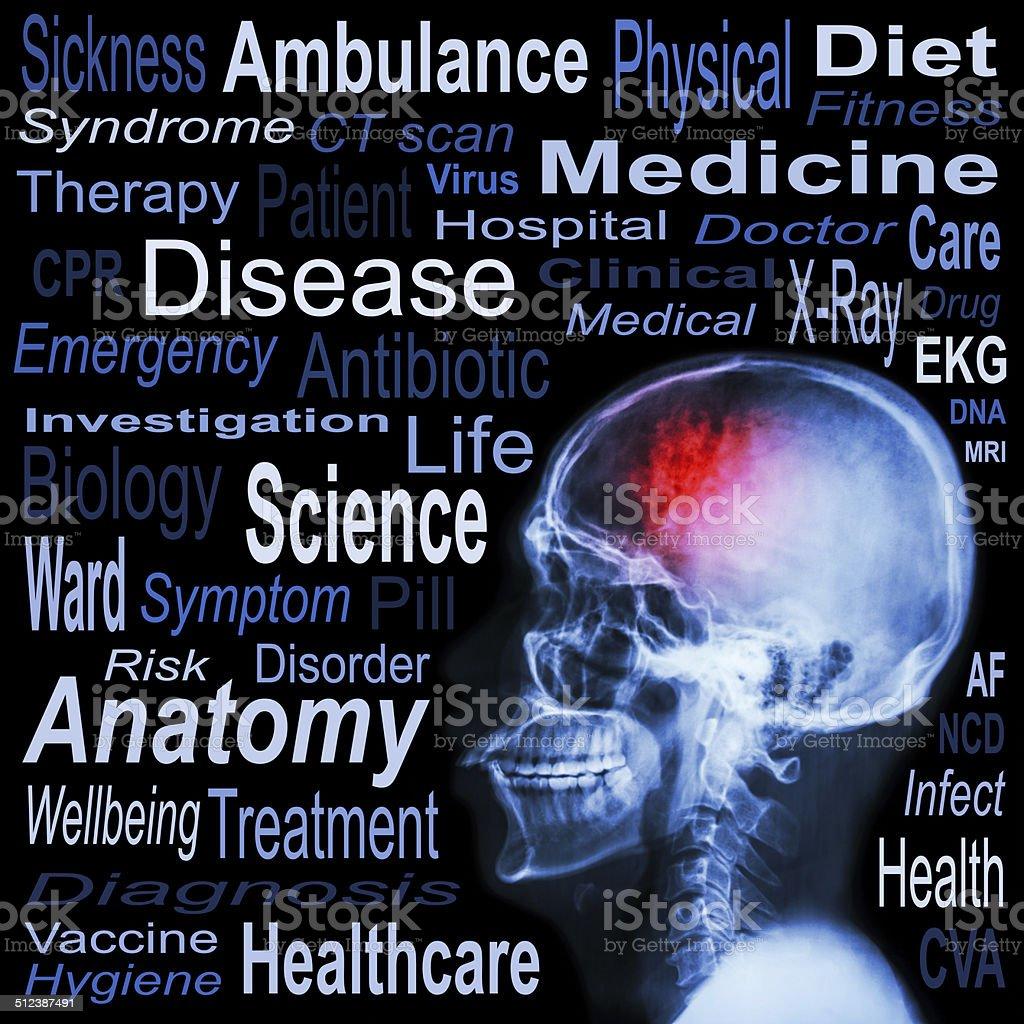 X-ray skull and Medical text stock photo
