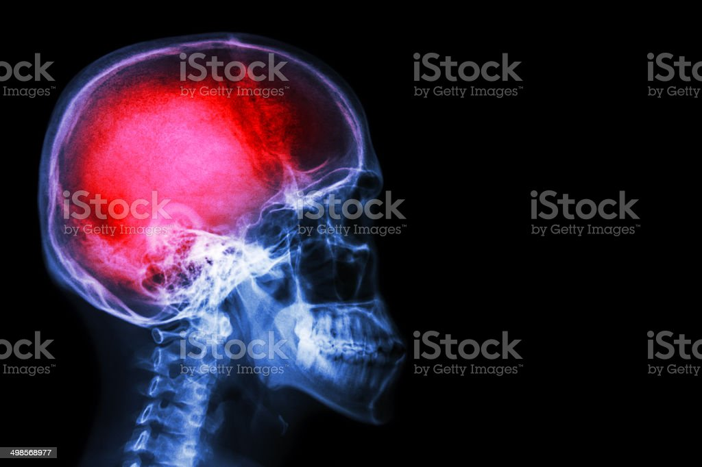 X-ray skull & cervical spine (lateral) with 'Stroke' stock photo