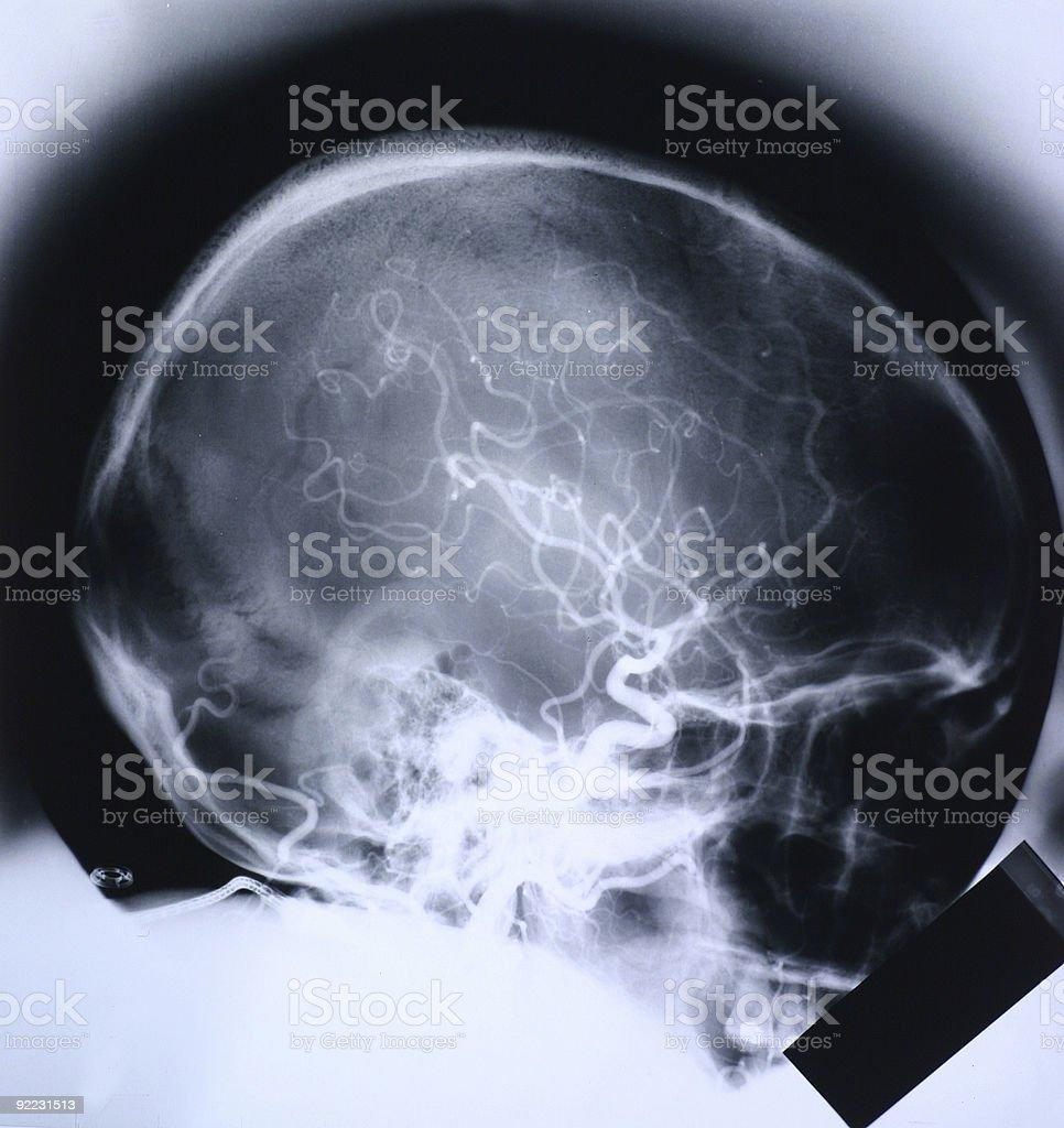 Xray skull royalty-free stock photo