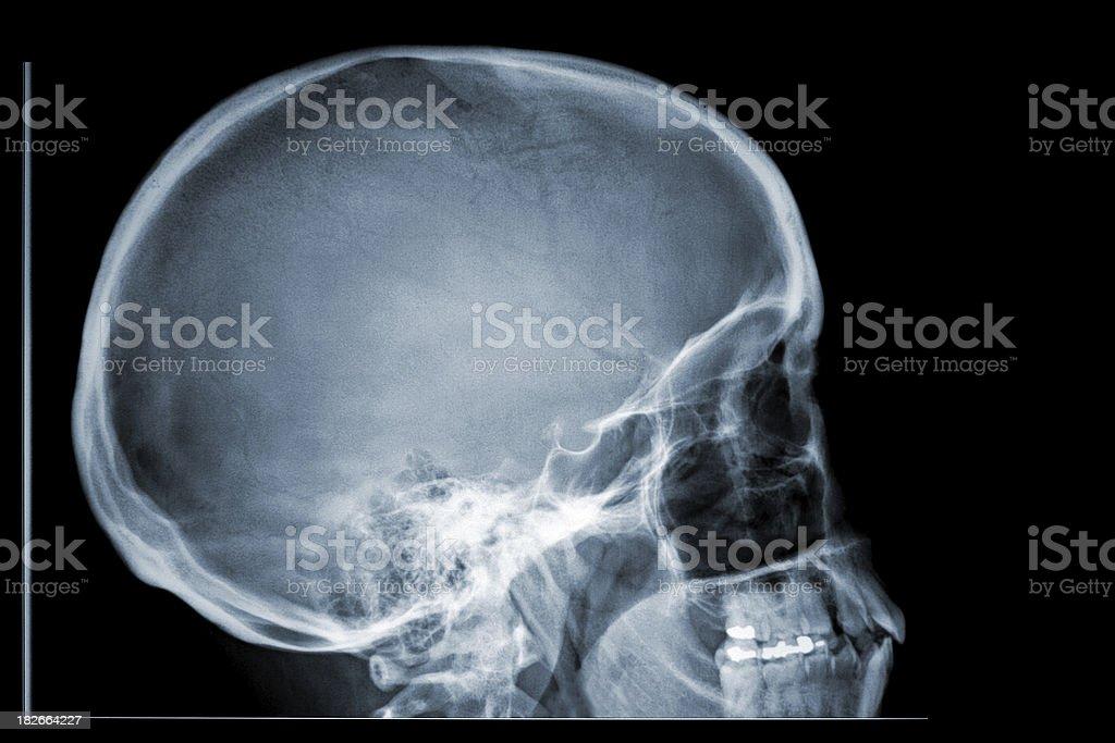 x-ray skull side profile royalty-free stock photo