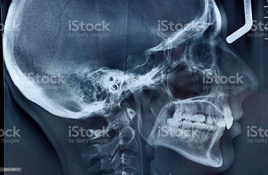 X-ray Skull Side View vector art illustration