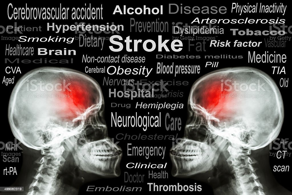 X-ray Skull with 'Stroke' and Medical text stock photo