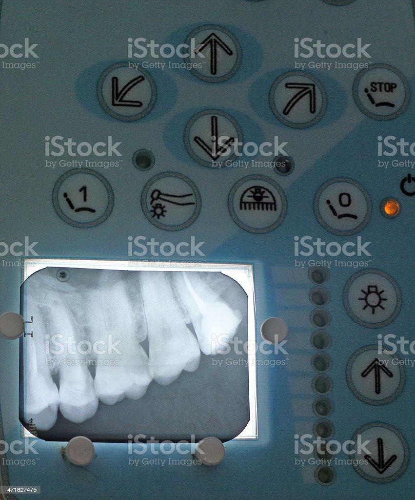X-ray teeth diagnostics on a monitor. royalty-free stock photo