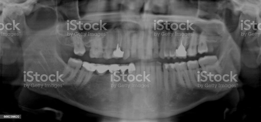 Xray Teeth Image stock photo