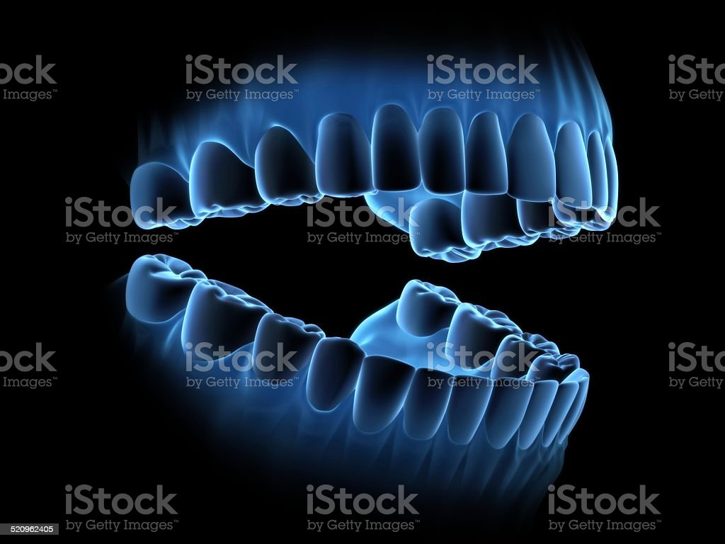 x-ray teeth with open mouth.(perspective view) stock photo