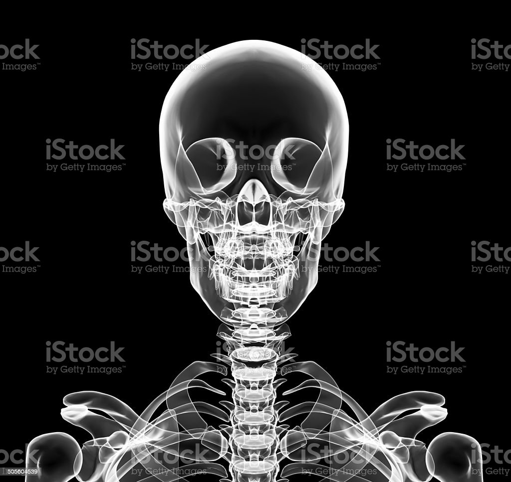 X-ray upper chest included skull stock photo