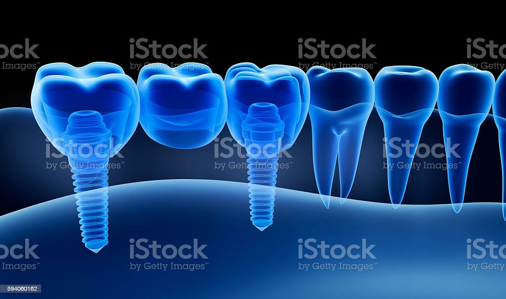 X-ray view of denture with implant.  Xray view. stock photo