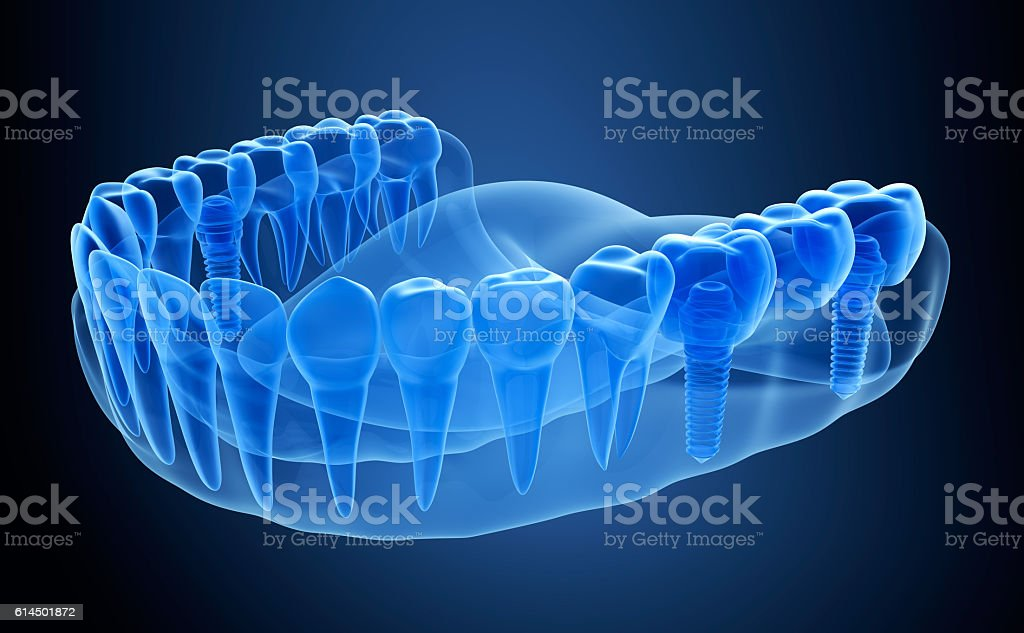 X-ray view of denture with implant.  Xray view. vector art illustration