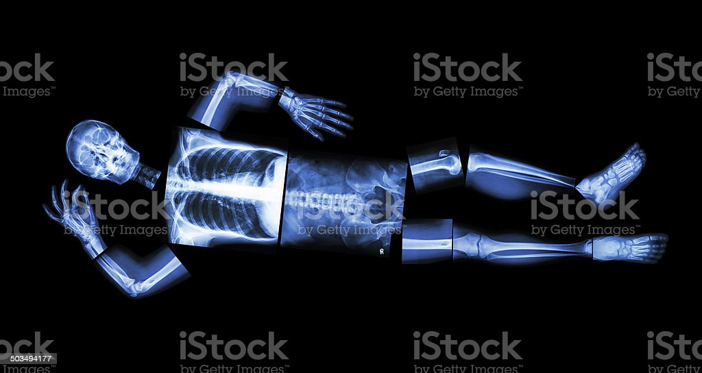 X-ray whole body and sleeping stock photo