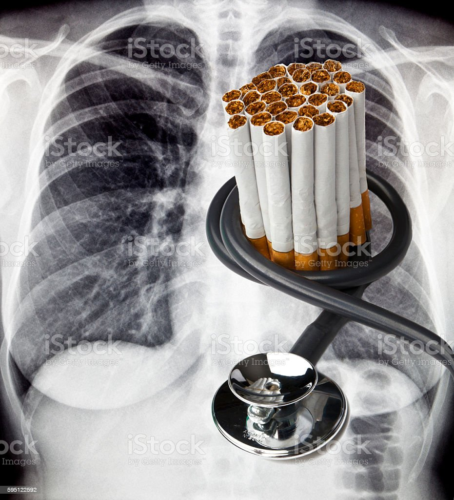 X-ray with Cigarettes and Stethoscope stock photo