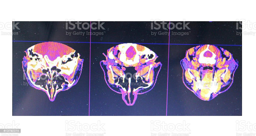 X-rays Nose stock photo