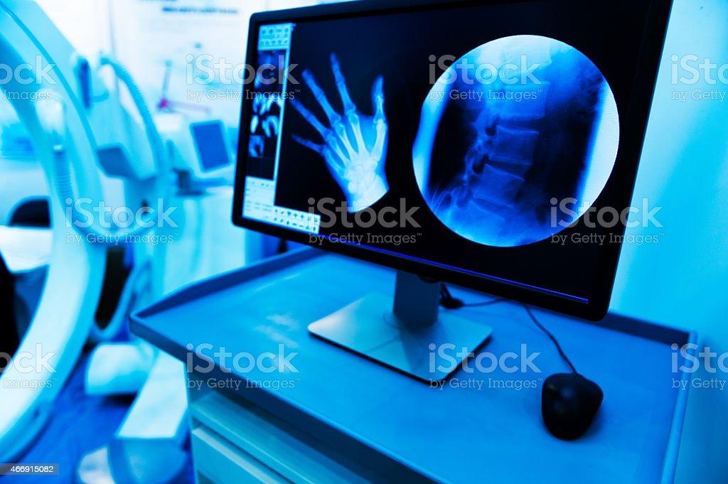 X-rays on monitor of hand and vertebrae stock photo