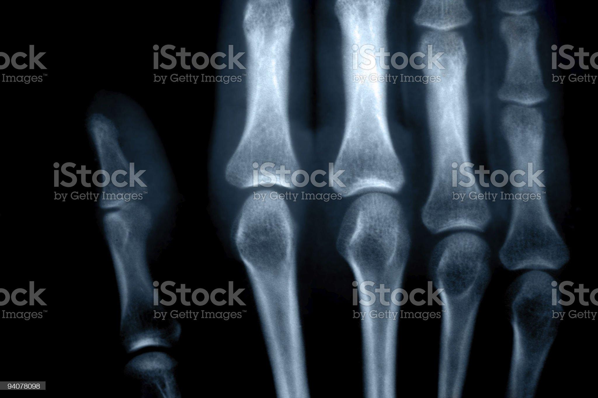 x-rays royalty-free stock photo