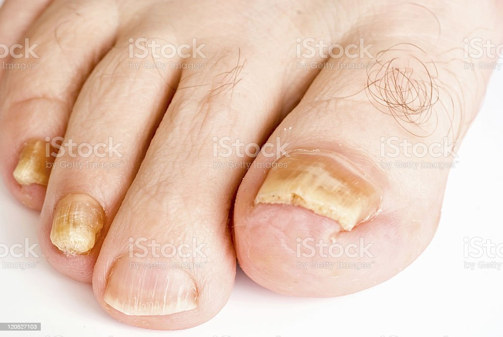 Yellow toenail cause by fungus stock photo