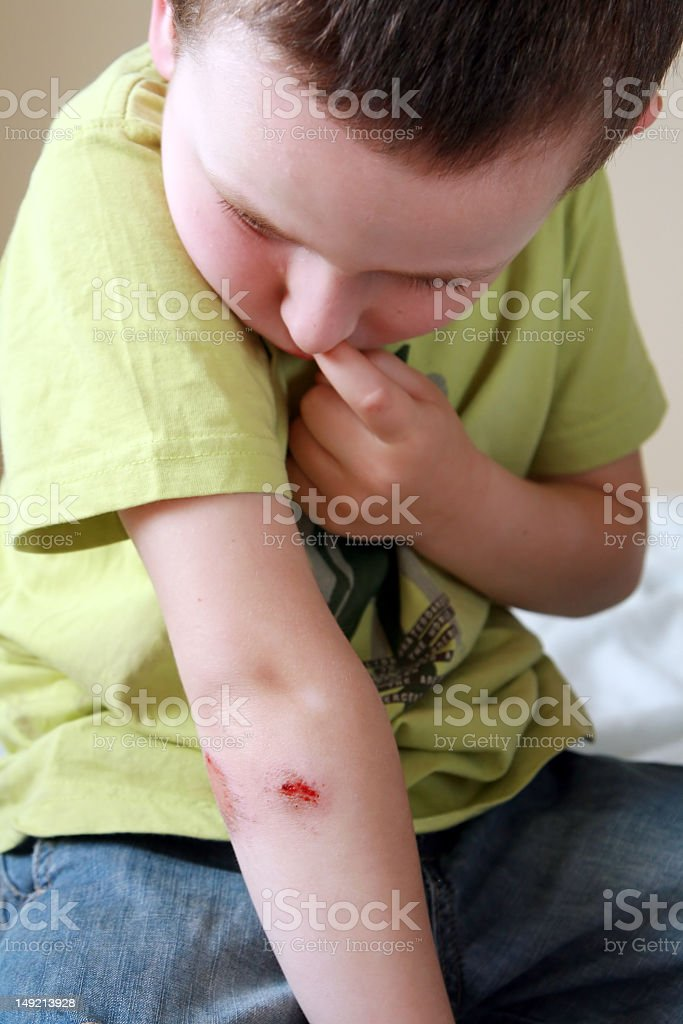 Young boy with a bleeding scraped elbow  royalty-free stock photo