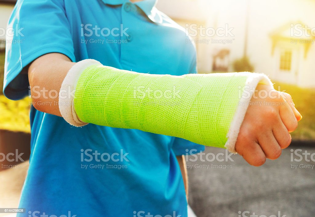 young boy with broken arm stock photo