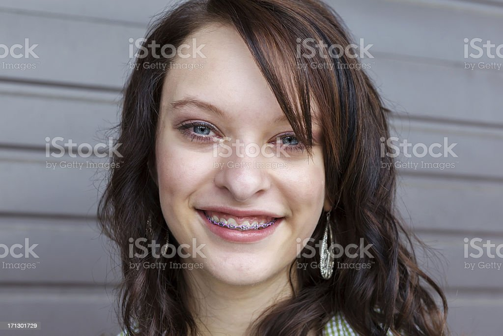 Young brunette female smiling showing braces on her teeth royalty-free stock photo