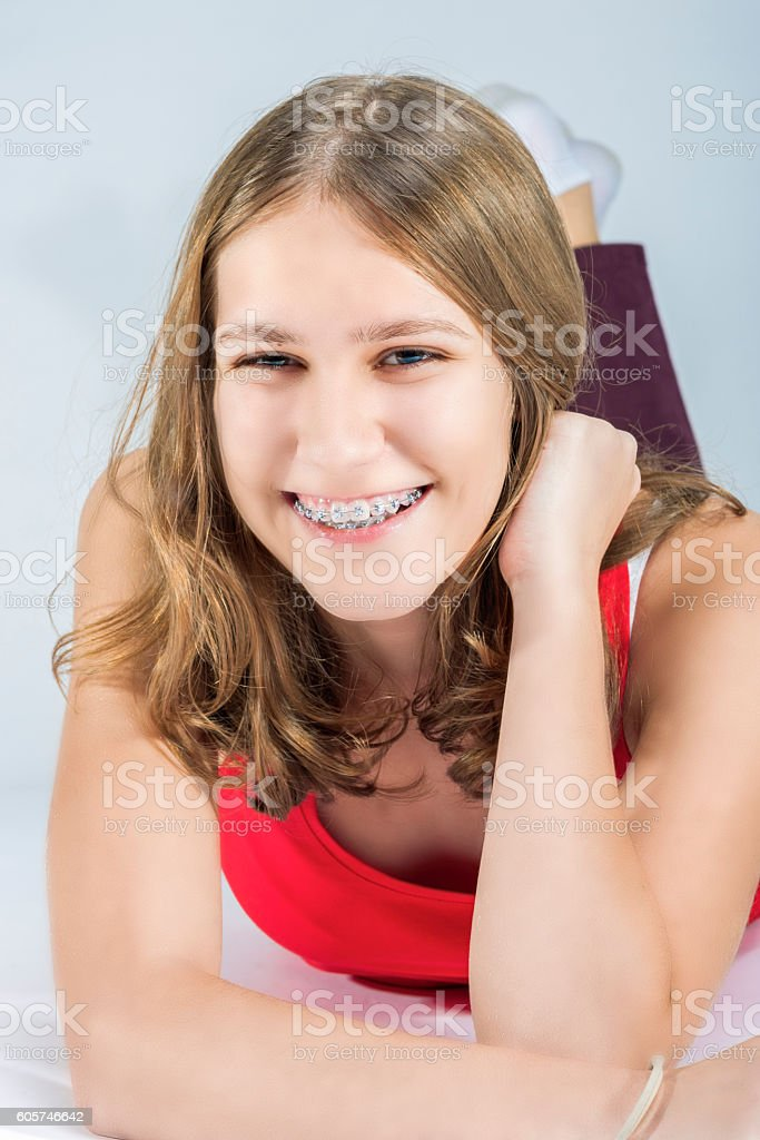 Young Caucasian Female With Teeth Bracket System stock photo