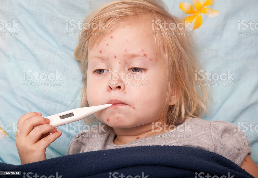 Young child sick with rashes measuring temperature stock photo