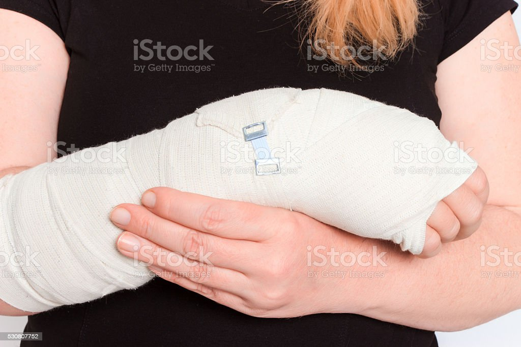 young female with broken hand in cast stock photo
