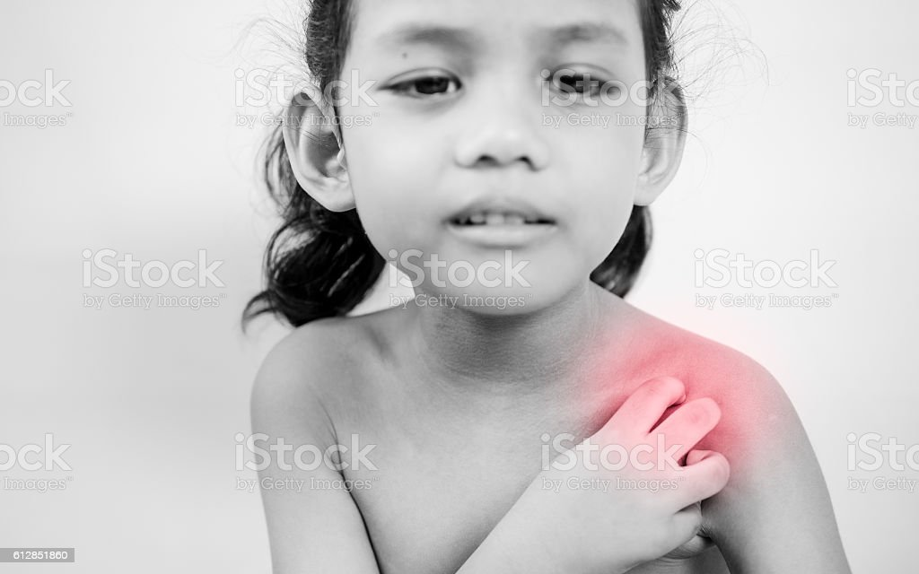 young girl scratch the itch with hand ,neck, itching. stock photo