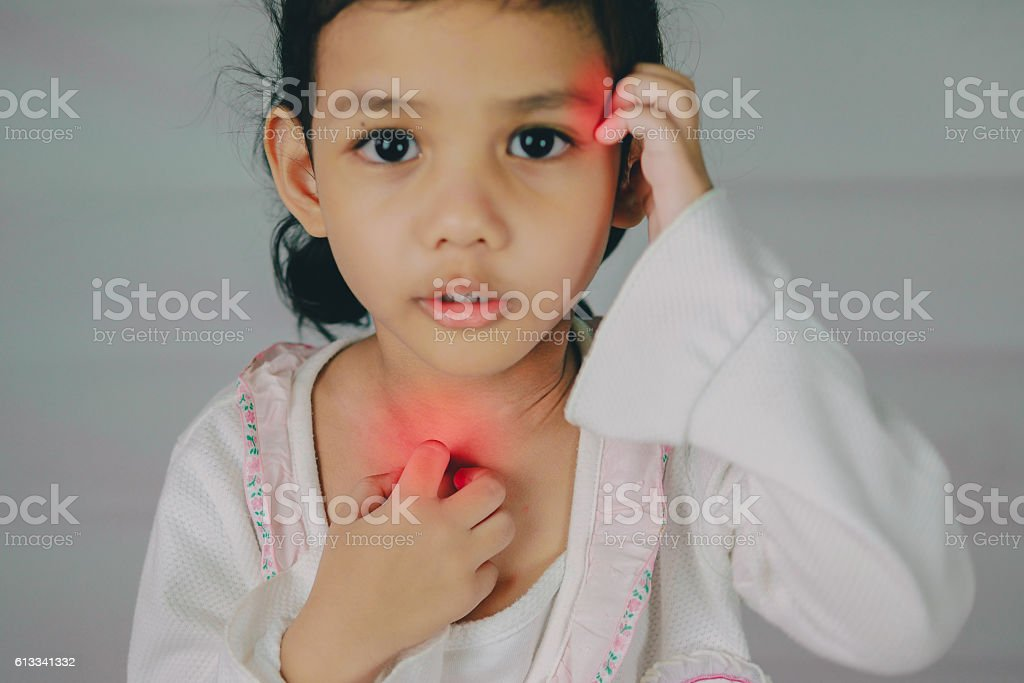 young girl scratch the itch with hand ,neck, itching stock photo