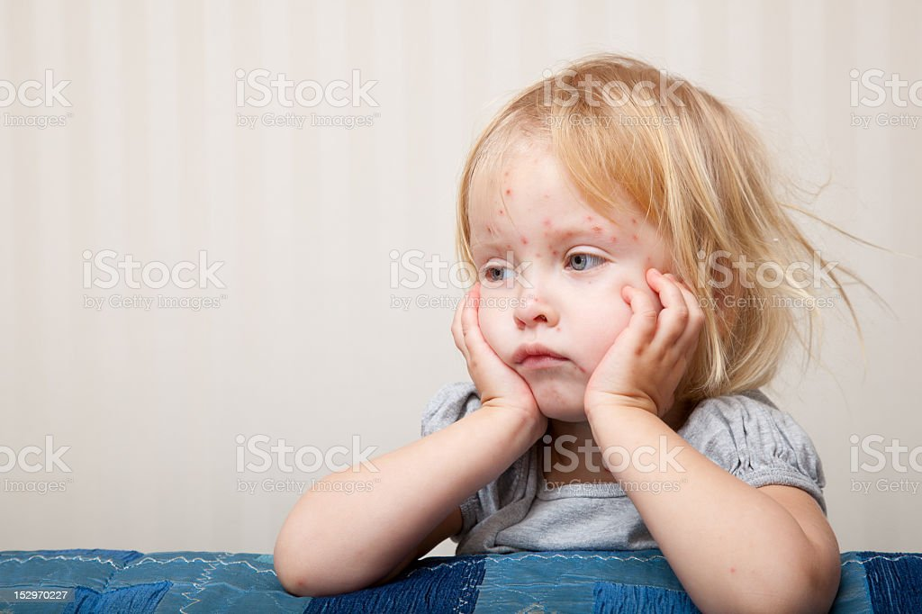 A young girl with chicken pox resting by her bed stock photo