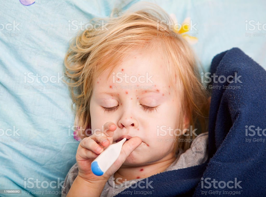 Young girl with chickenpox taking her temperature stock photo