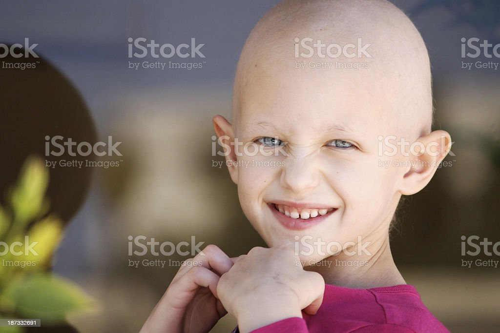 Young girl with hair chemotherapy hair loss stock photo