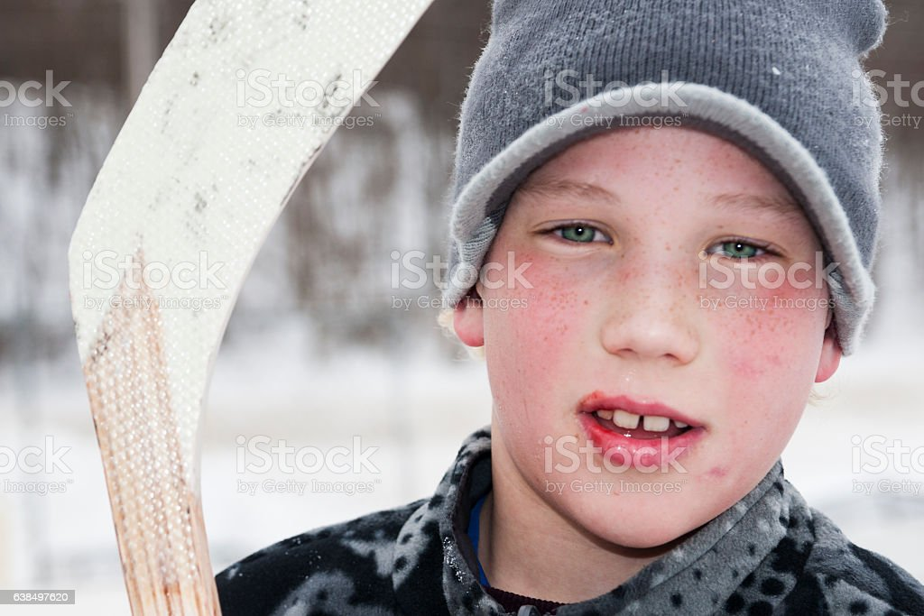 Young hockey player with busted lip stock photo