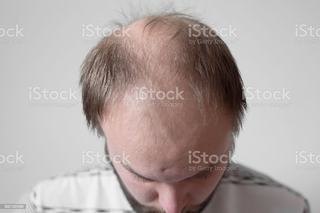 young man bending down to show balding head stock photo