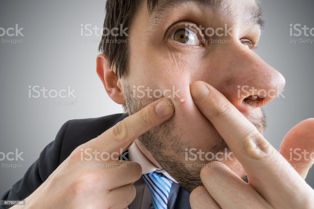 Young man is squeezing pimple or acne on his skin. stock photo