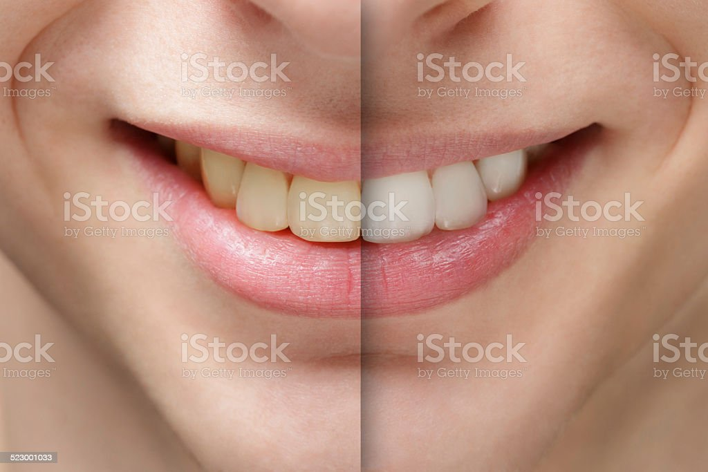 young man smile before and after teeth whitening stock photo