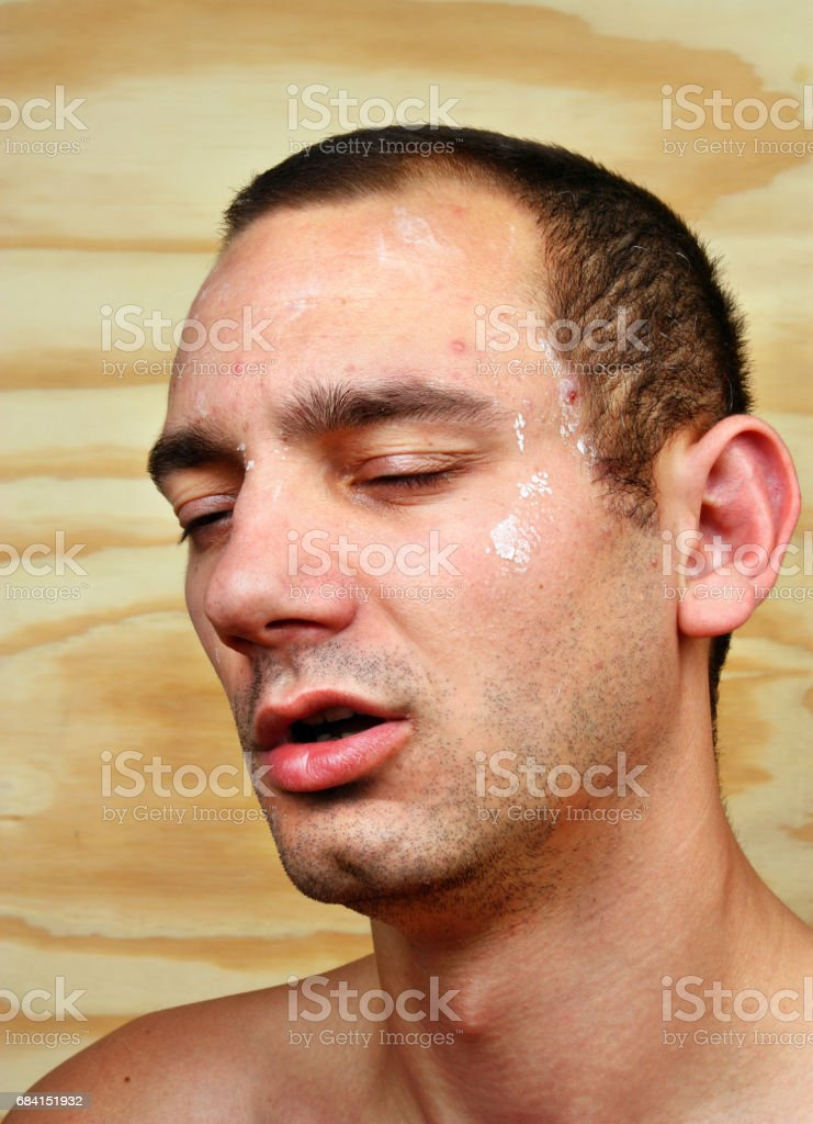 Young man with a chronic infection of the skin stock photo