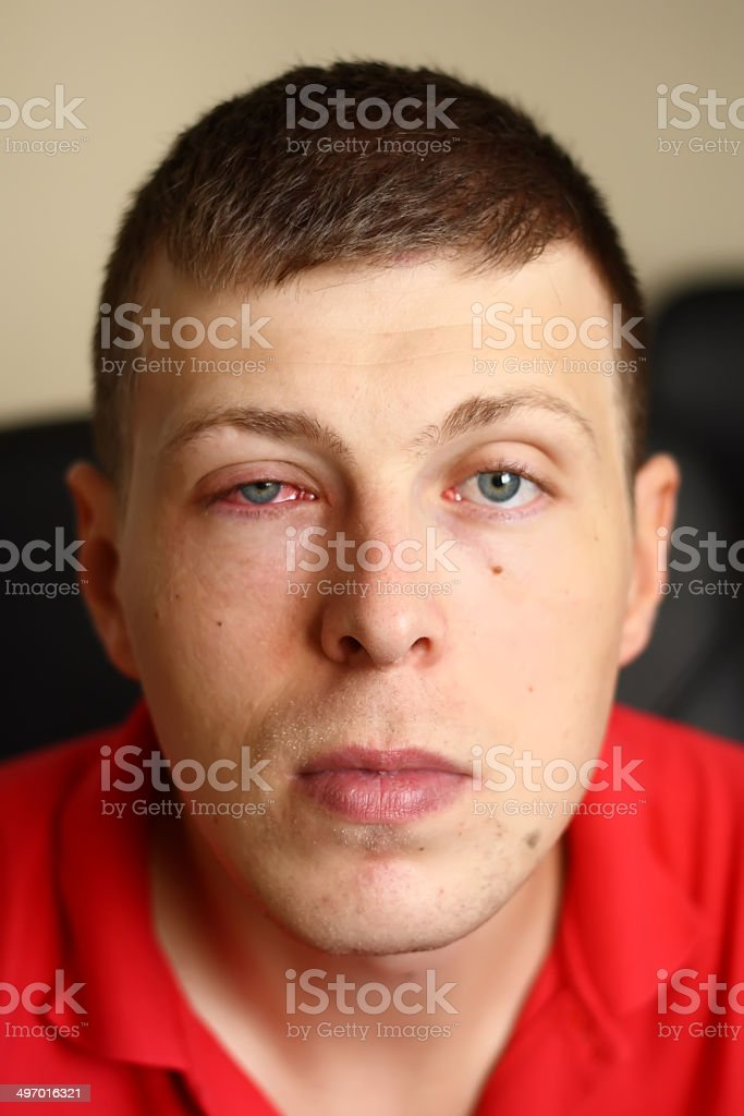 Young man with a pink eye stock photo