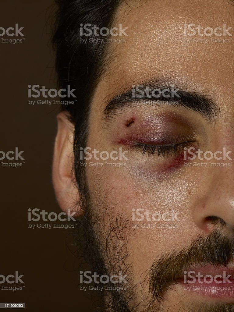 Young  Man With Bruised And Black Eye stock photo