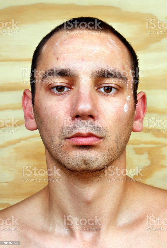 Young man with chronic infected candida albicans stock photo