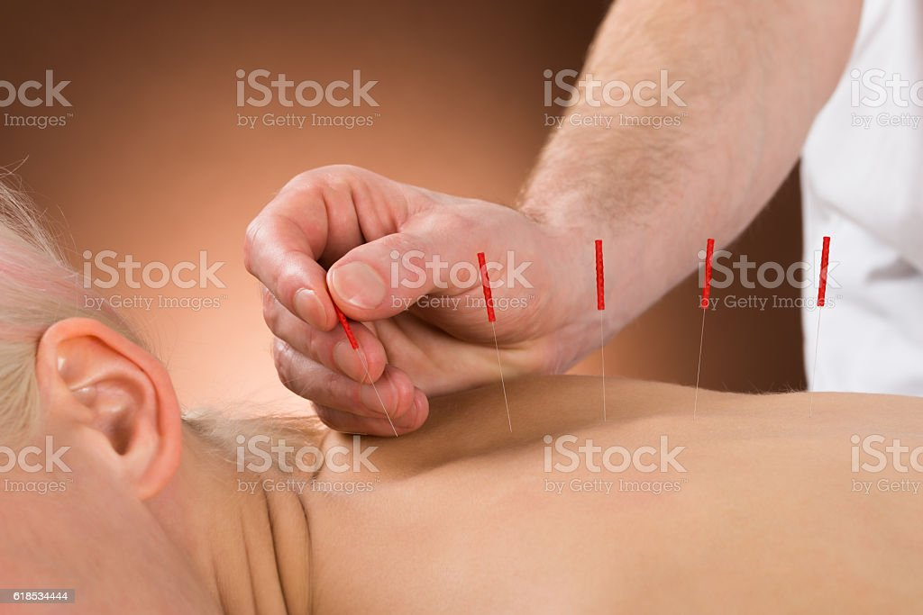 Young Person Receiving Acupuncture Treatment stock photo