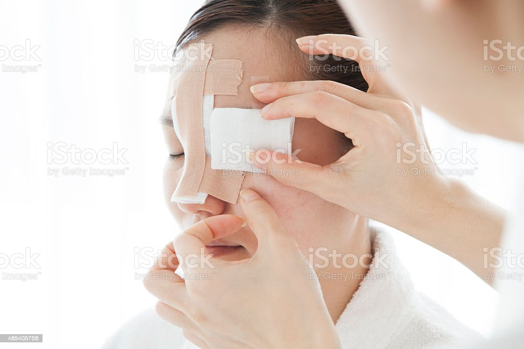 Young woman after facial plastic surgery stock photo