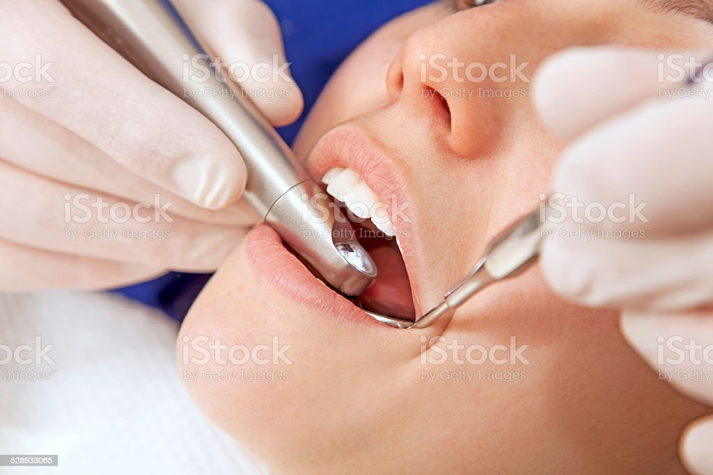 Young woman at dentist stock photo
