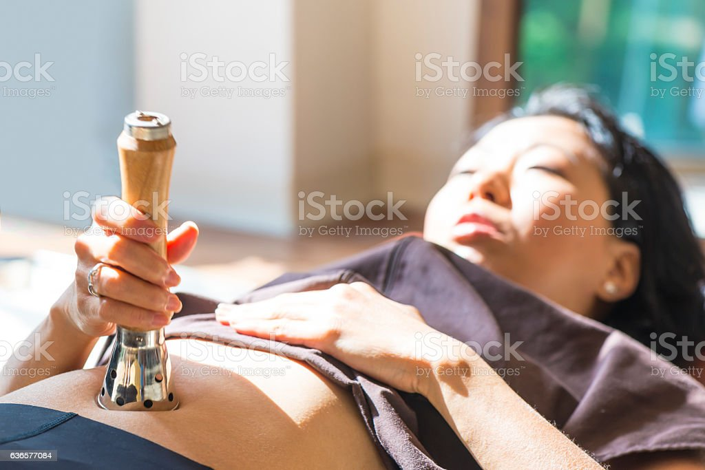 Young woman at the  Acupuncture moxa treatment stock photo