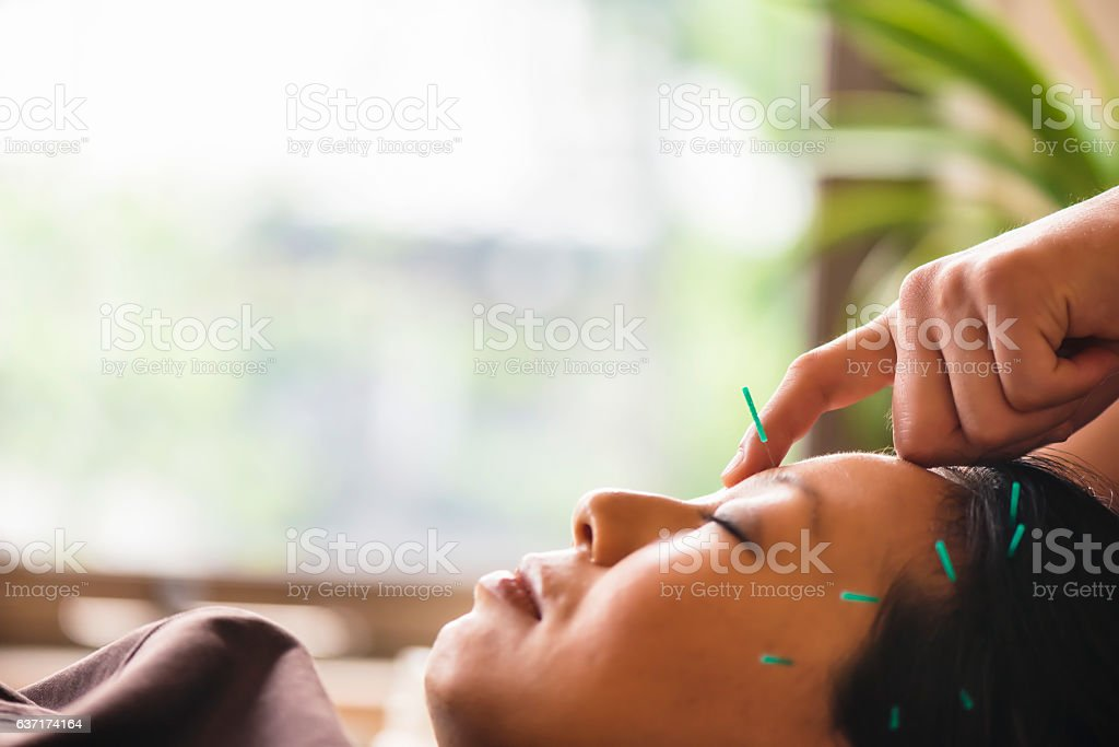 Young woman at the acupuncture treatment stock photo
